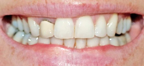 Invisalign braces nov 10 | by hollywoodsmile