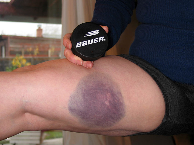 My best bruise of all - January 6, 2004