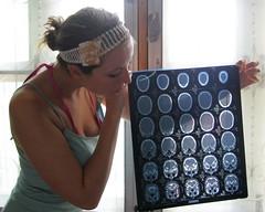my brain | by A_of_DooM