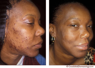 Acne Laser Treatment On Dark Skinned Woman Before After Flickr