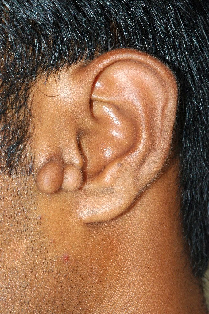 Accessory Auricle | Dr  Sanjay Dhawan | Flickr