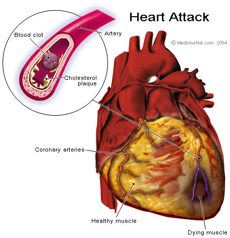 heart attack anatomy