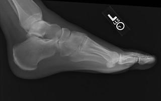 My Foot 2 | by AMagill