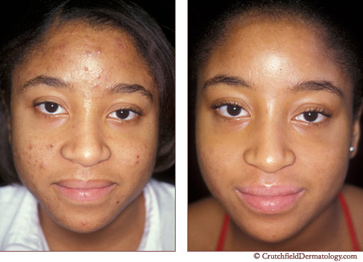 Acne Laser Treatment On Dark Skinned Young Girl Before After