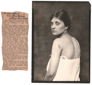 bit her on the left arm 1924 | by Least Wanted
