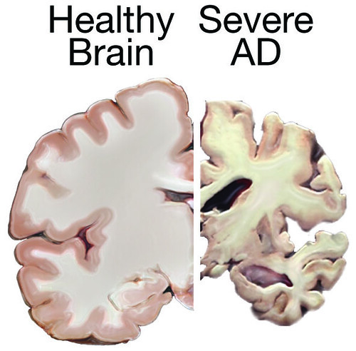 Healthy Brain and Severe AD Brain | by National Institutes of Health (NIH)