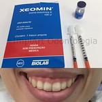 A próxima paciente receberá aplicação de toxina botulinica com finalidade terapêutica de DTM e suavização do sorriso gengival. O sorriso gengival ocorre por um tensionamento muscular tal que o paciente exibe exageradamente as gengivas. #dayclinic #implant