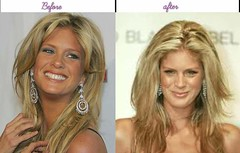Rachel Hunter Acquired Plastic Surgery Her Following Just Before Appears To Be Like