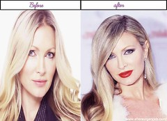 Beautiful Women Celebrities Caprice Bourret Just After Getting Plastic Surgery Serious Photos