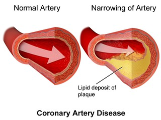 Artery disease | by Oregon State University