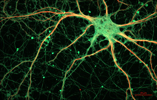 Cultured Rat Hippocampal Neuron | by ZEISS Microscopy