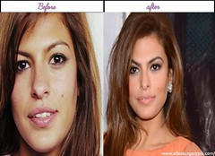Beautiful Women Celebrities Eva Mendes Soon After Obtaining Plastic Surgery Genuine Pictures