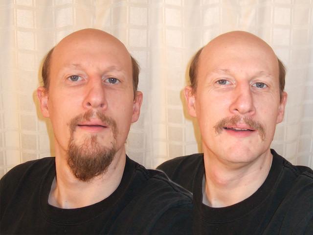 2074 Craig Beard Before After