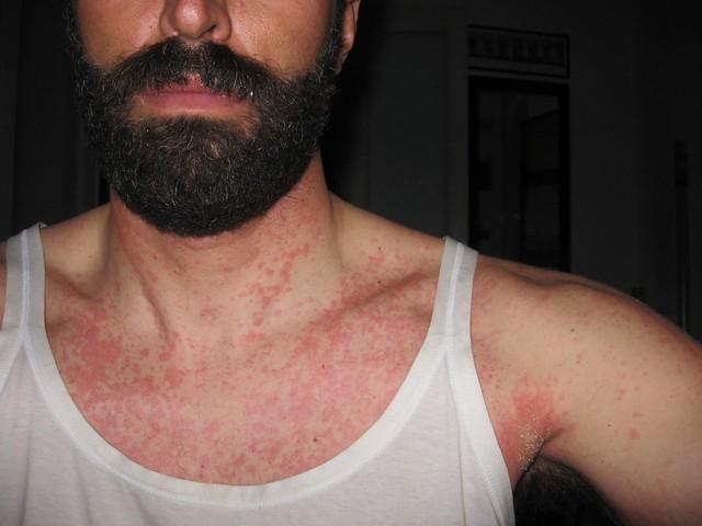 allergia_penicillina