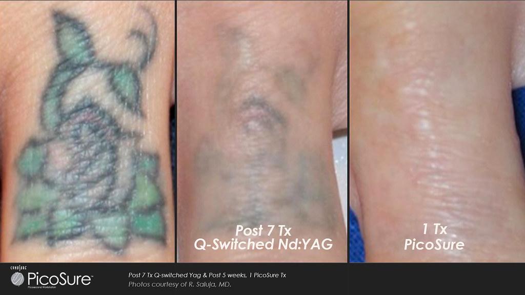 Tattoo Entfernung Mit Dem Picosure Laser Andreas