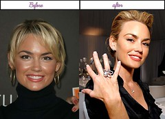 Pictures Kelly Carlson Immediately After She Gone Through Plastic Sugery In 2014