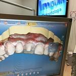 Projetando mais um caso de coroa em EMax e lentes dentais no Cerec #implart #estetica #clinicadental #lentesdecontatodental #lentesdecontato #dayclinic #cerec