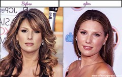 Pics Of Daisy Fuentes Soon After Prior To Operation