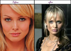 After Plastic Surgery Pictures Of Izabella Scorupco She'S Really Charmful Soon After Plastic Beauty Surgical Procedure
