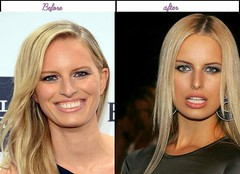 After Before Pictures Of Karolina Kurkova When She Had Her Plastic Sugery In Latest Yr