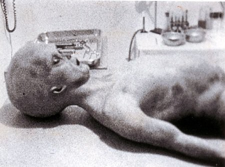 Alleged-Roswell-Autopsy | by Altered_Dimensions