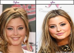 Holly Valance Received Plastic Surgery Her Just After Before Looks