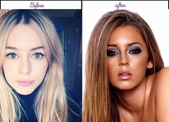 5 Photos Of Keeley Hazell Just After Prior To Plastic Surgery 2014