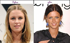Best 5 Pictures Of Nicky Hilton Just After Before Surgical Procedure In Yr 2013