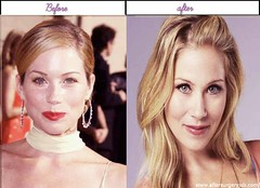 Best 5 Pictures Of Christina Applegate Immediately After Right Before Surgery In Year 2013