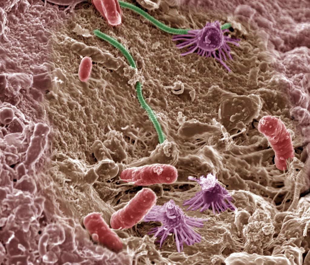 пунктам каждый фото бактерий человека на теле такое