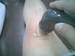 膝蓋超音波治療中 | by neil_lin