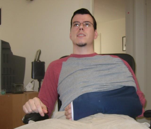 My broken arm
