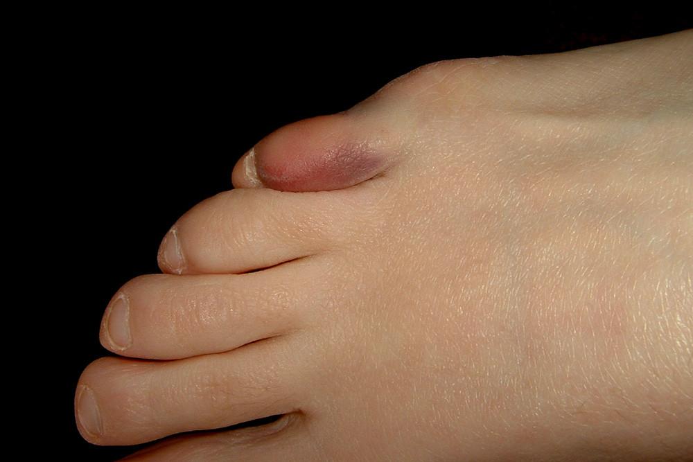 Purple stubbed toe Pinky Toe