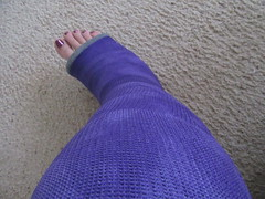 In a Cast