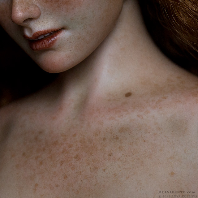 Freckled sensuality