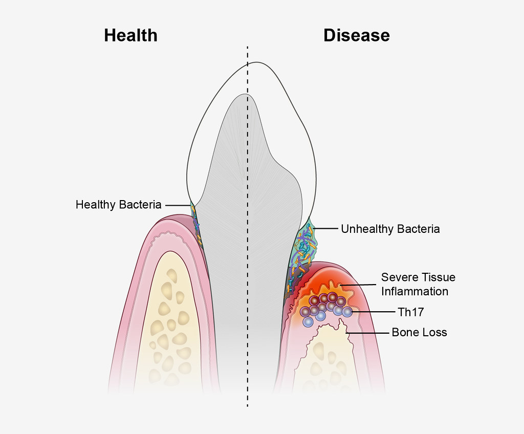 Causes of Periodontal Disease | A new study suggests that pe… | Flickr