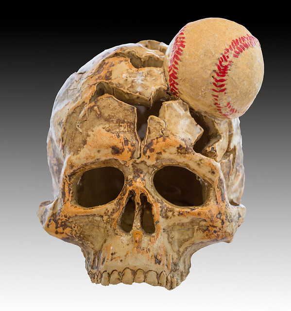 Ceramic artwork of a human skull with embedded baseball by artist Carl J. Anderson ca: 2000