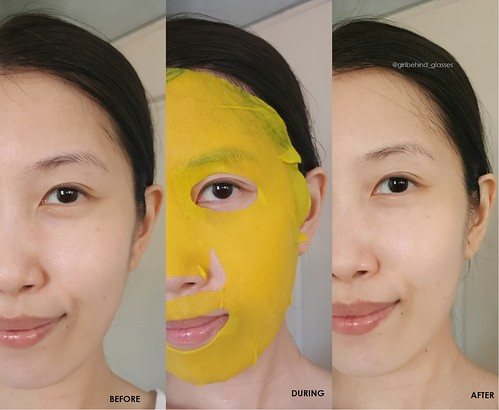 Eyenlip Calamansi Vitamin Solution Mask before and after | by <Nikki P.>