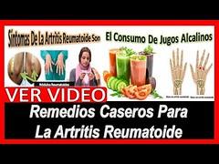 Remedios Caseros Para La Artritis Reumatoide, Artritis, Artritis Reumatoide, Artritis Sintomas