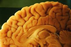 Brain Cut | by Carlos Lorenzo