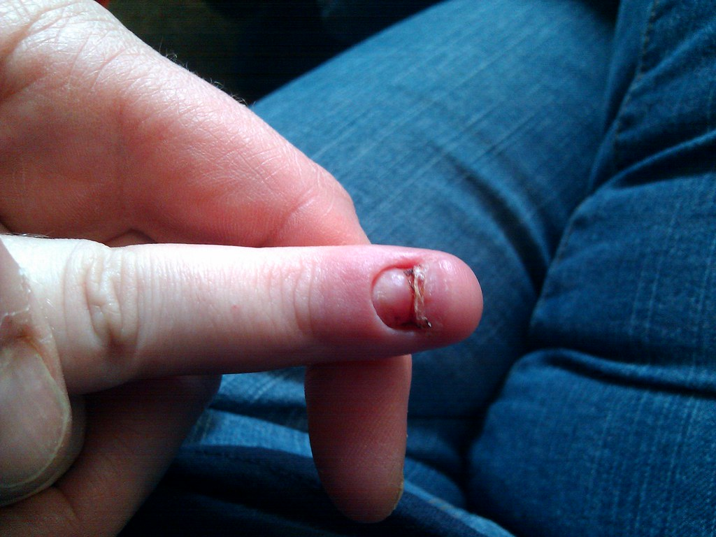 Andrew's fingernail growing back (squicky) | Rebekah Sprecher | Flickr