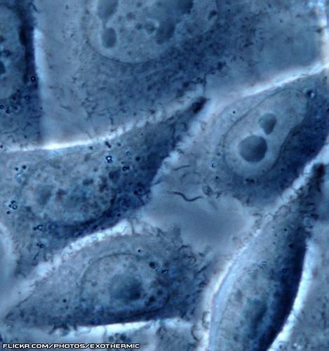 cell cellular micro plasma microscopic biology cells microscope mitochondria cho biological membrane microscopy nucleus molecular mtsu nuclei vitro nucleolus phasecontrast chinesehamsterovary chok1 nucleoli microfirecamera