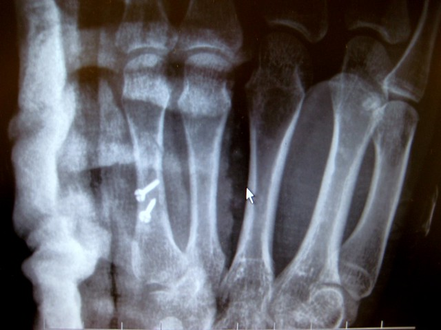 Titanium screws in 5th Metacarpal, Left Hand
