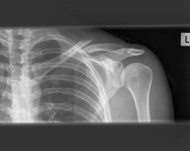 Broken bones healing | x-rays from my 4 week exam  I'm reall… | Flickr