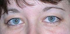 trillobites eyes