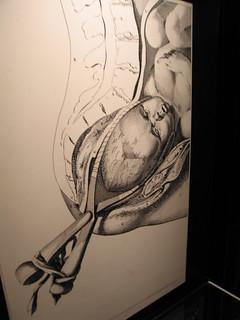 Forceps Childbirth   by Hexagoneye Photography