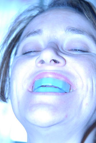 Extreme Teeth Whitening | by tsuacctnt