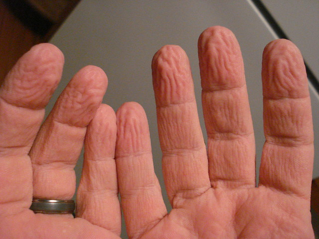 Mike's wrinkly hands