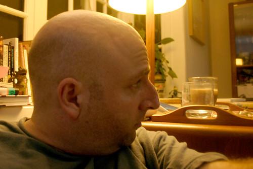 I am bald, profile view.
