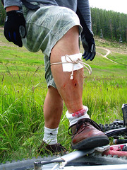 Improvised First Aid - Winter Park, Colorado | by gregor_y